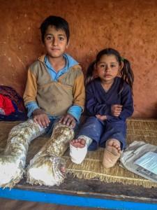 Zwei Kinder drei Gipsbeine
